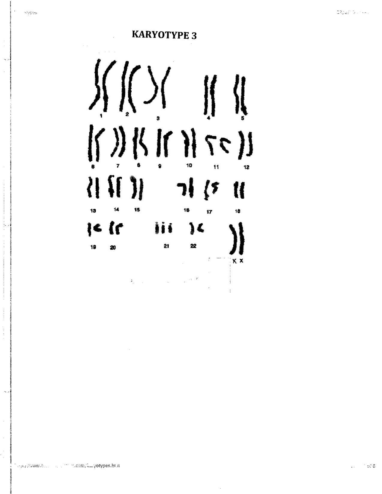 worksheet Karyotyping Worksheet Luizah Worksheet And Essay Site – Karyotyping Activity Worksheet