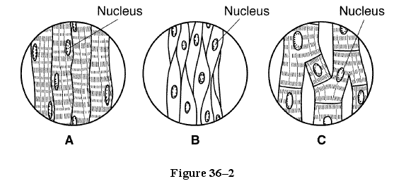 Bio exam proprofs quiz which diagrams in figure 362 shows muscles that decrease the size of the pupils of your eyes in bright light ccuart Image collections