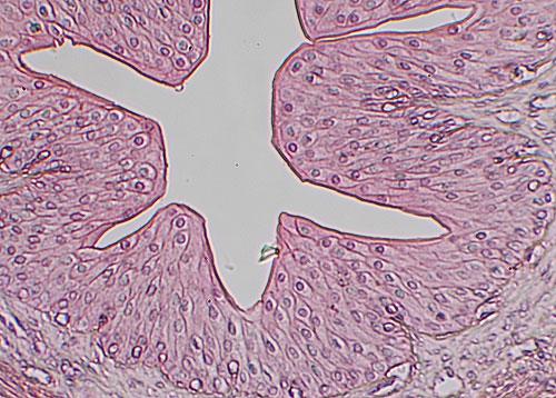 Transitional epithelium nucleus
