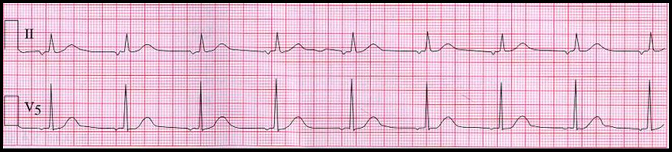 Ectopic Pacemaker