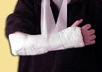 Broken bones and fractures are common injuries from home renovation mishaps