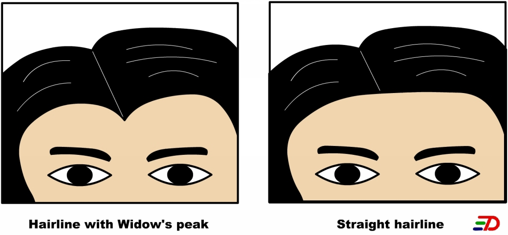 Is having a widow s peak inherited or acquired   inheritedWidows Peak Vs Straight Hairline