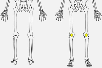 The Rom Of Major Joints together with Péroné furthermore Impingement Syndrome as well Torture rack as well . on knee bones